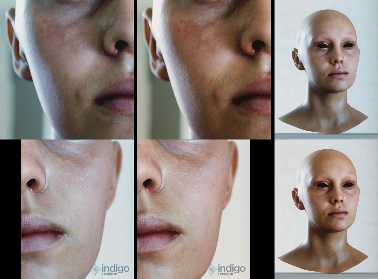Skin tests